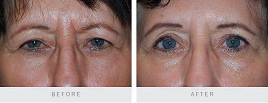 Before and After: Bilateral Upper Eyelid Blepharoplasty, Browplasty